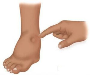 足のむくみの解消法 血行をよくして余分な水分を …